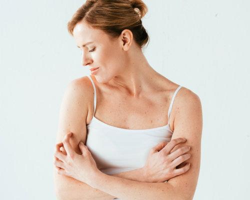 Neurodermitis, eine chronische Hauterkrankung